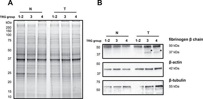 Immunoblotting analyses of three differentially expressed proteins in healthy normal (N) versus rectal tumor (T) tissues belonging to good responders (TRG 1-2) and poor responders (TRG3 and TRG4).
