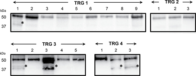 Immunoblotting validation of fibrinogen β chain expression in individual rectal cancer tissues of patients with good (TRG 1-2) or poor response (TRG 3 and TRG4) to neoadiuvant chemoradiotherapy.