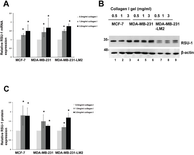 RSU-1 is upregulated in increased stiffness conditions in MCF-7, MDA-MB-231 and MDA-MB-231-LM2 cells.