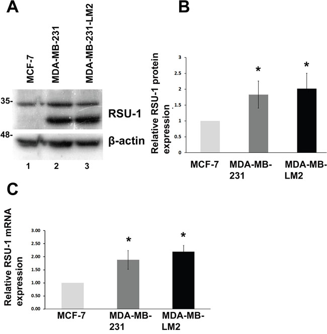RSU-1 mRNA and protein expression is elevated in more aggressive BC cells compared to less aggressive.