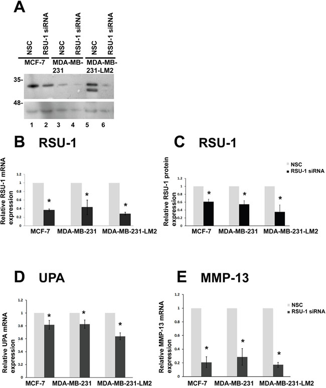 RSU-1 is effectively silenced in 2D conditions and its silencing leads to downregulation of UPA, and MMP-13 in all three BC cell lines.