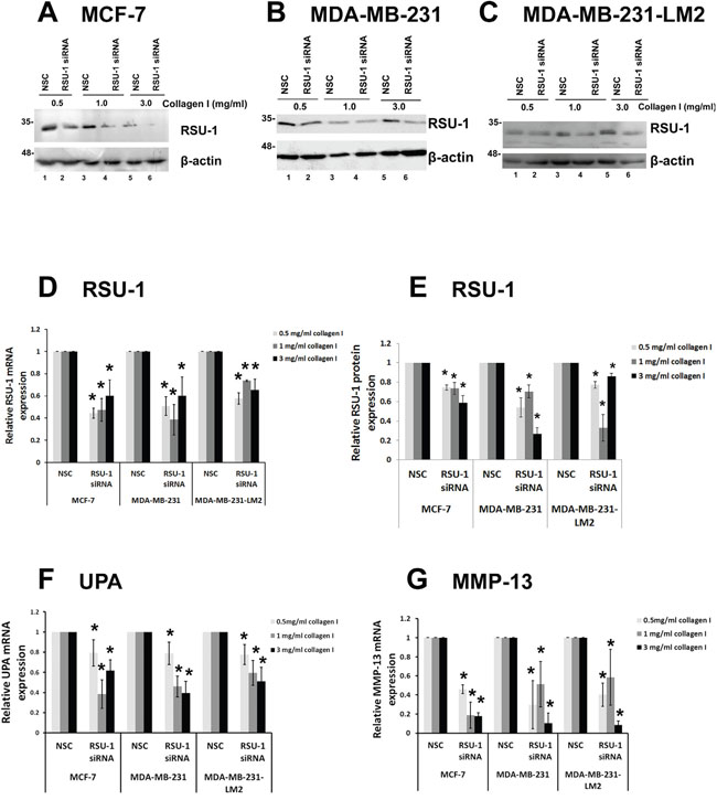 RSU-1 is effectively silenced in 3D conditions and its elimination downregulates UPA, and MMP-13 in all three BC cell lines.