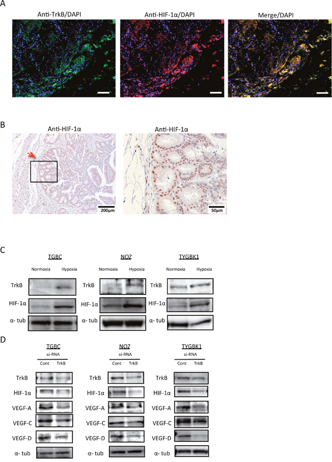 TrkB-mediated signaling promotes HIF-1α, VEGF-A, VEGF-C, and VEGF-D expression.