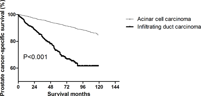 Log-rank test for prostate cancer-specific survival (PCSS) to compare infiltrating ductal carcinoma (IDC) and acinar cell carcinoma (ACC) (P < 0.001).