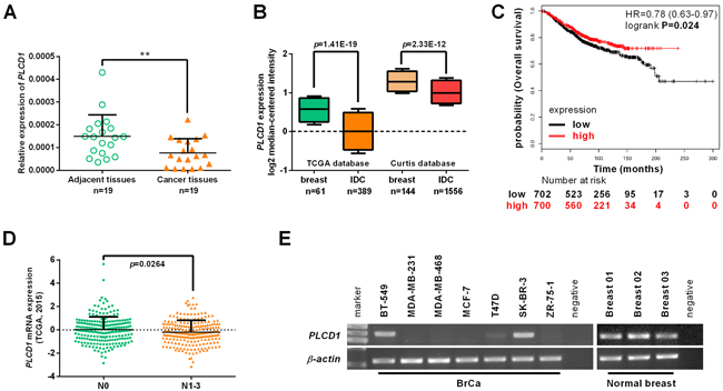 Expression of PLCD1 in breast cancer cell lines and breast cancers.