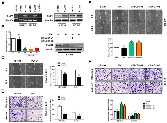 PLCD1 inhibits cell migration and invasion in vitro.