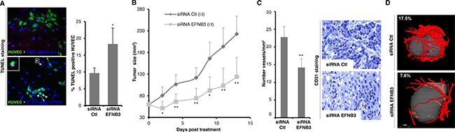 Ephrin-B3 gain of expression in GBM favors tumor's growth and vascularization in a mouse xenograft model.