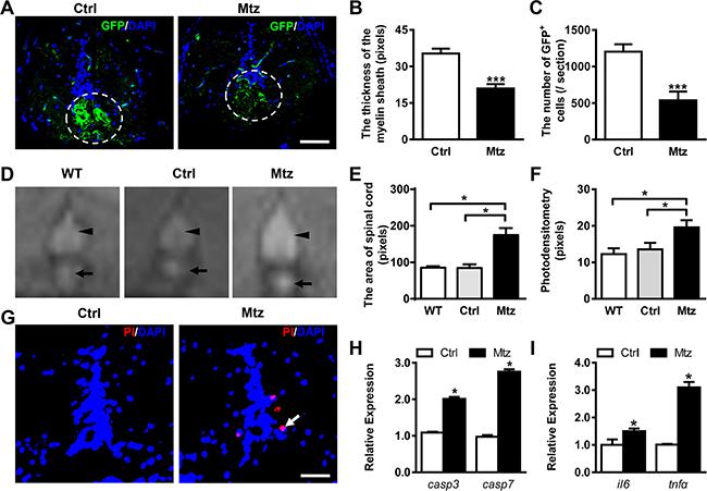 Metronidazole treatment leads to effective demyelination in adult Tg (mbp:nfsB-egfp) zebrafish.