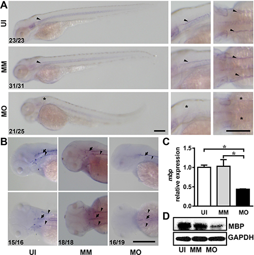 IL-7R knockdown delays myelination in the nervous system.