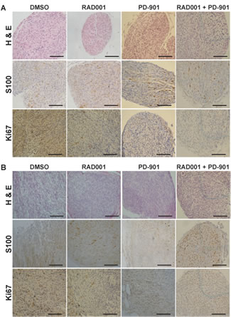 Immunohistochemical analysis of drug treated tumors.