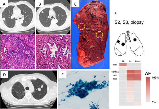 Radiologic, pathologic and genomic findings of the lung cancer in Case 3.