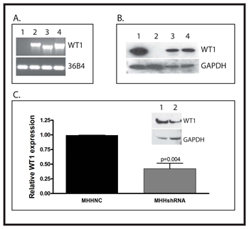 Creation of stably transfected cell lines A: RNA was isolated from SK-ES-1 cells transfected with an empty expression vector (Lane 1) or vectors directing expression of WT1A (Lane 2) or WT1D (Lane 3).