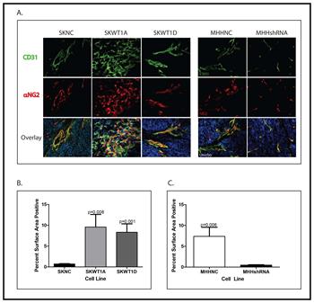 Effect of WT1 on tumor angiogenesis.