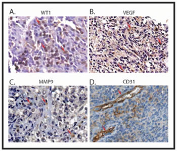 Correlation between the expression of WT1, VEGF, MMP9 and CD31 in Ewing sarcoma.