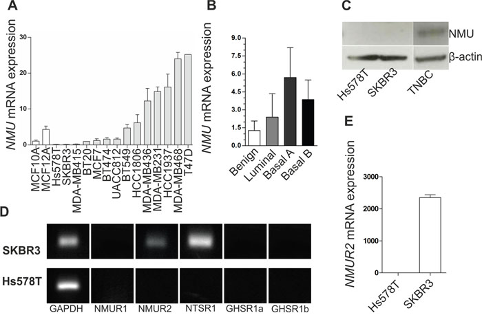 NMU ligand and NMU receptor expression in breast cancer cell lines.