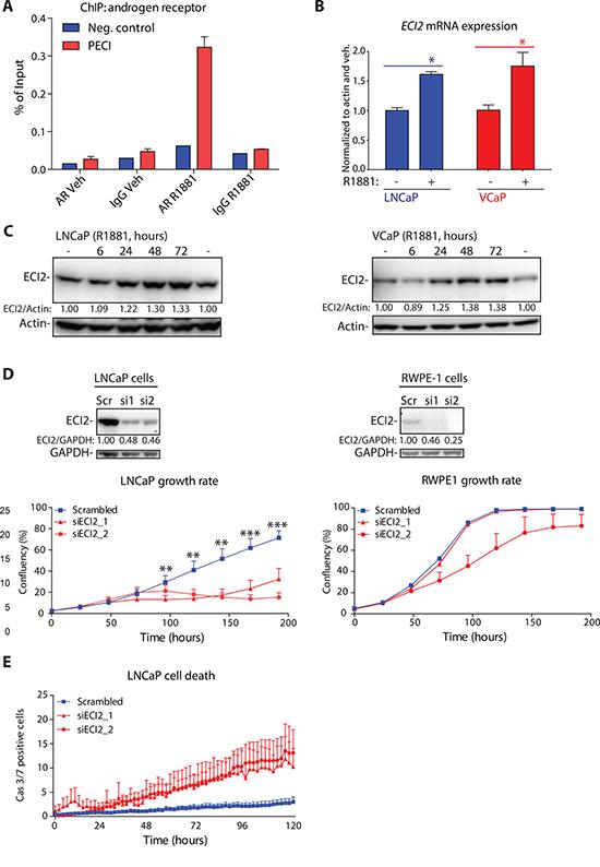 Androgen receptor (AR) regulates Enoyl-CoA delta isomerase 2 (ECI2) expression.