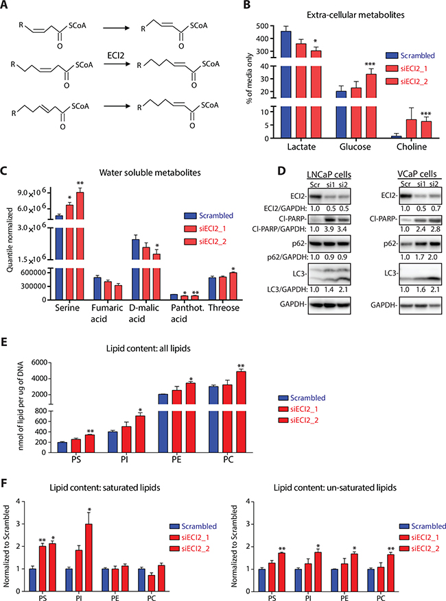 Metabolomic profiling after ECI2 knockdown in LNCaP cells.