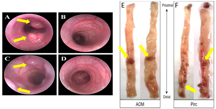 Representative animal model images showing colonoscopy and tumors.