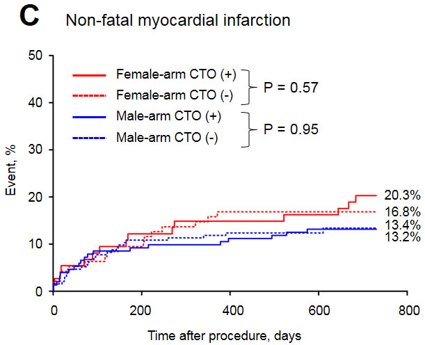Long-term myocardial infarction rate in the study groups.