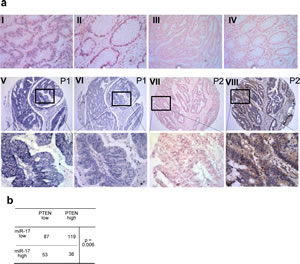 Fig 4: PTEN expression is negatively associated with miR-17-5 level in colorectal tissue.