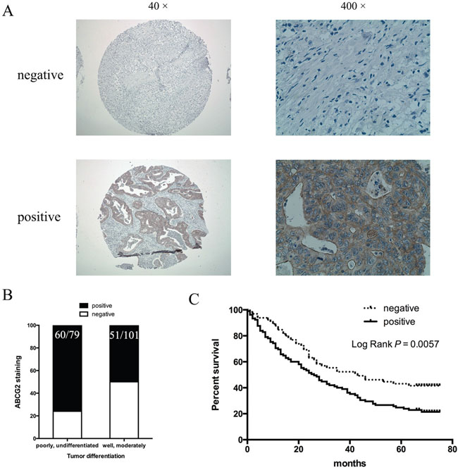 Correlation of ABCG2 expression in gastric cancer with tumor differentiation and patient survival.