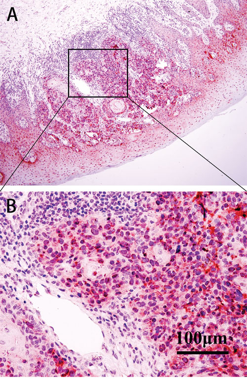 IHC of BAP1 in patient samples.