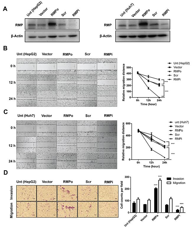 RMP promotes migration and invasion of HCC cells in vitro.
