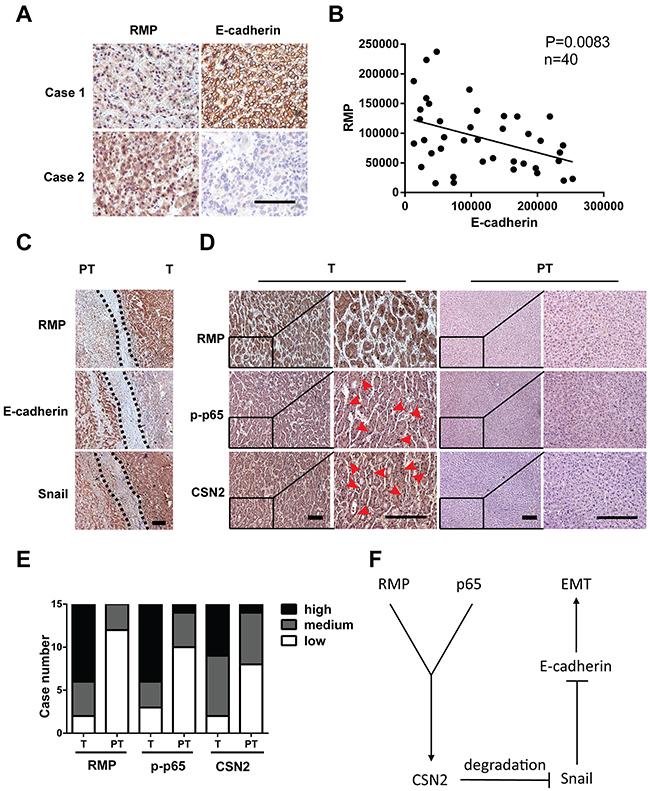 RMP regulates the expression of EMT factors in human HCC tissues.