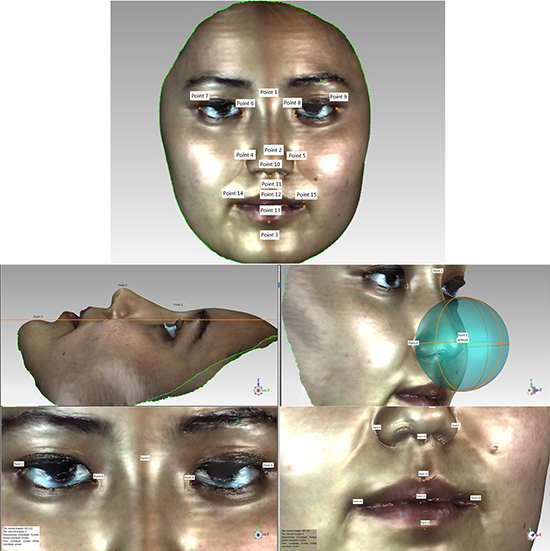 Facial landmarks extracted from 3D imaging.