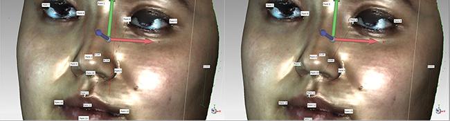 Distance measurements of 3D facial image landmarks.