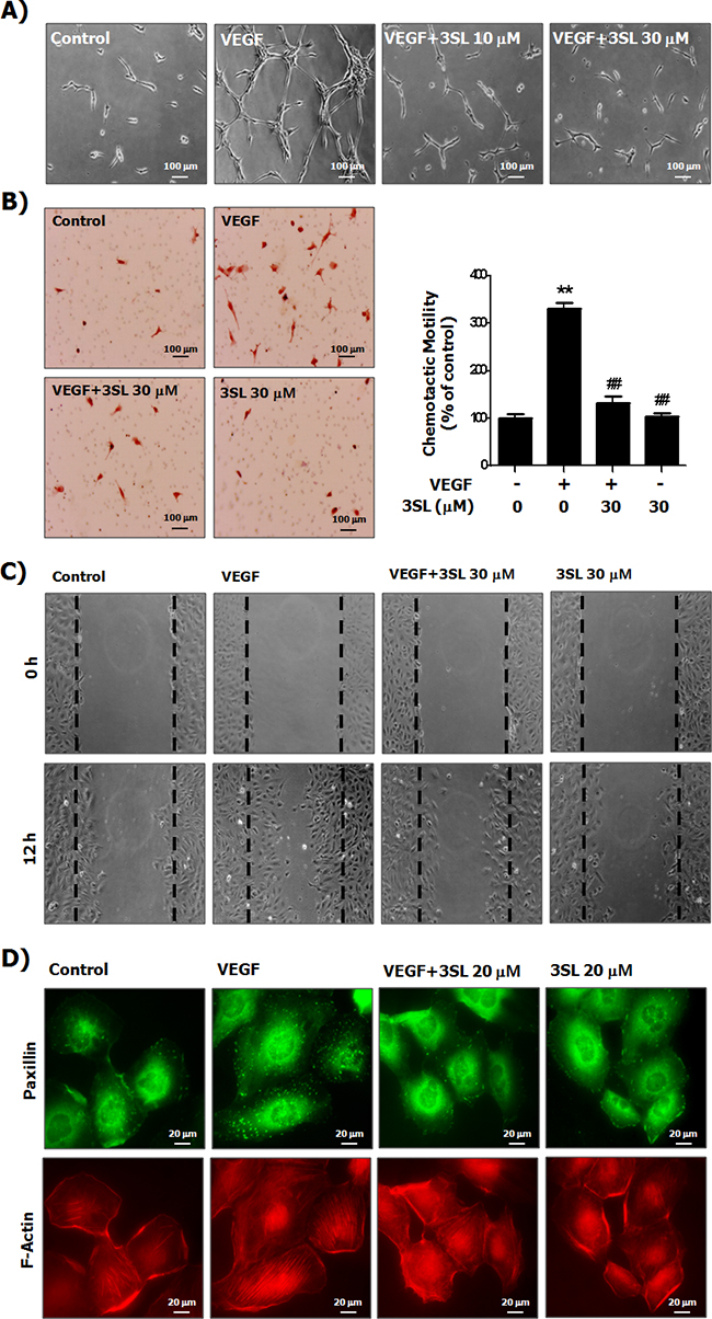Suppressive effects of sialyllactose on tube formation, migration and formation of the actin stress fibers of HUVECs.