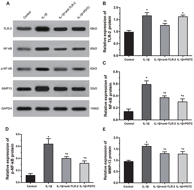 Comparisons of protein expressions of TLR-2, NF-κB, p-NF-κB and MMP-13 by Western blotting among four groups.