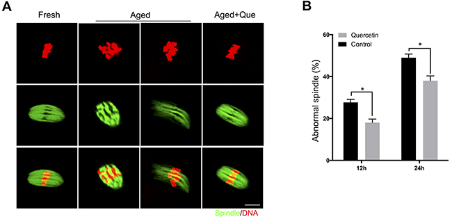 Effects of quercetin on spindle morphology during postovulatory aging.
