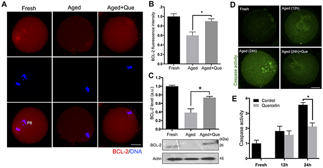 Effects of quercetin on oocyte apoptosis during postovulatory aging.