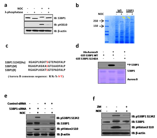 Aurora B phosphorylates 53BP1 at residue S1342 during mitosis.