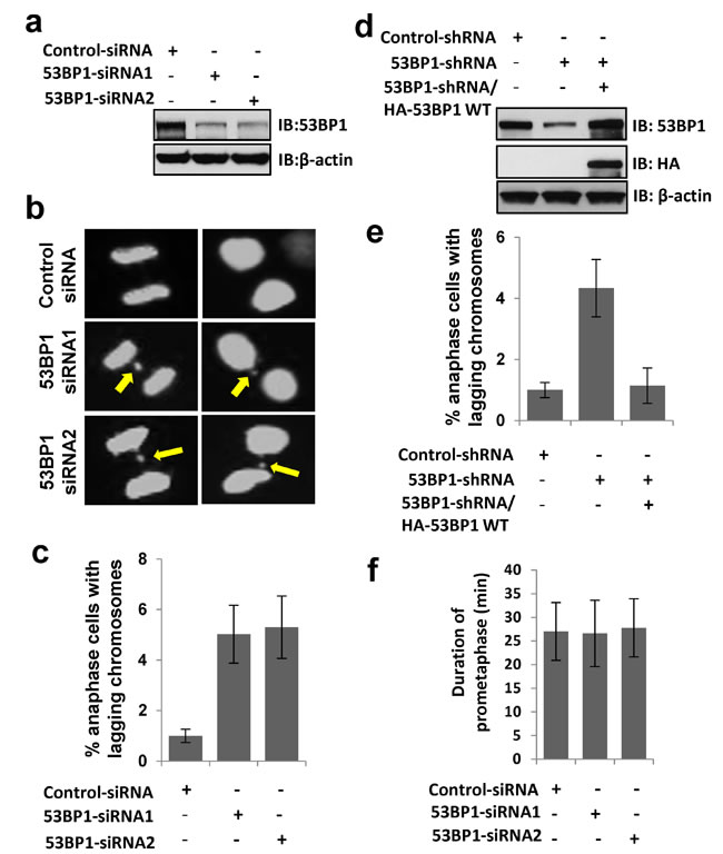 53BP1 loss results in lagging chromosome formation.