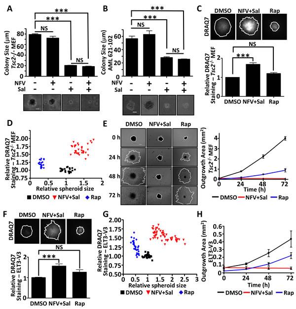 Dual nelfinavir/salinomycin treatment is effective in 3D models.