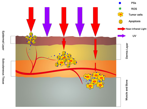 The antitumor effect of various wavelength light sources.