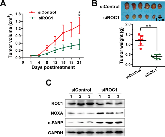 ROC1 silencing suppressed esophageal tumor growth in vivo.