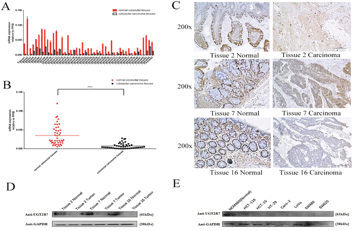 UGT2B7 is specifically repressed in CRC.