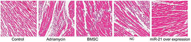 H&E stained myocardial tissue of rats post recovery among the five groups (Negative control, adriamycin treatment only, BMSC, pLVX-BMSC and pLVX-miR-21-BMSC; x 200).