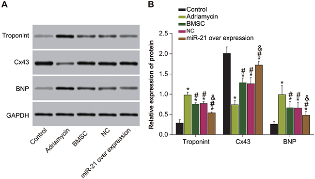 Expressions of Cx43, troponin T and BNP among five groups of rats (negative control, adriamycin treatment only, BMSC, pLVX-BMSC and pLVX-miR-21-BMSC).