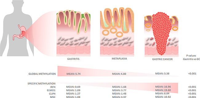Graphical representation of histologic and molecular progression stages proposed for gastric adenocarcinoma, with mean values for global and gene-specific promoter methylation of IRF4, ELMO1, CLIP4 and MSC.