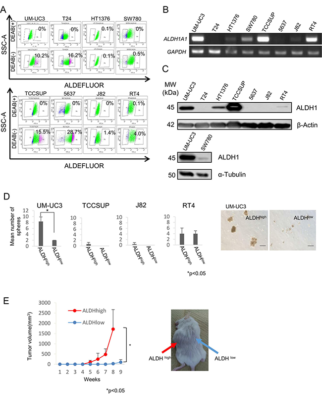 Expression of ALDH1A1 and isolation of UC CSCs/CICs.