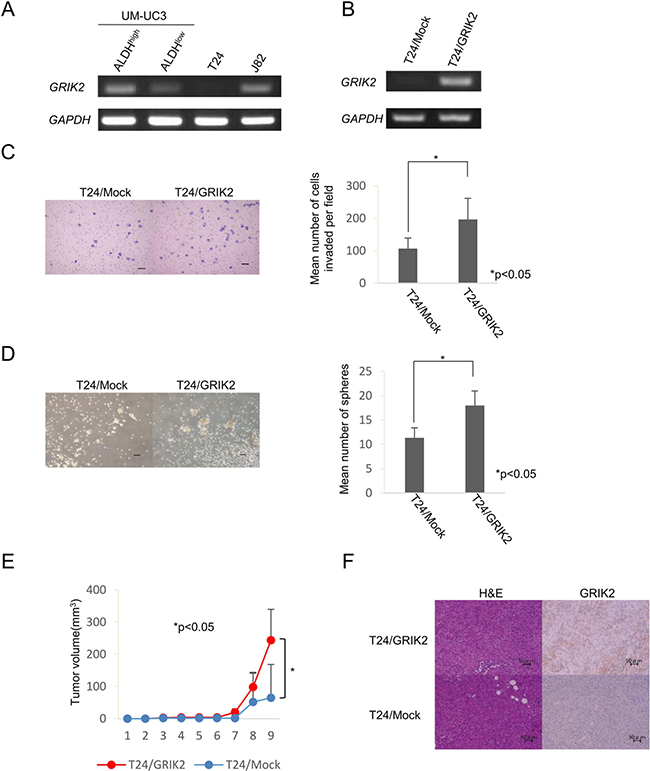 Functional analysis of GRIK2 by stable tranformants.