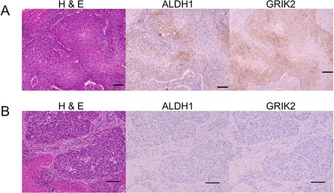Histological images of H&E, ALDH1 immunohistochemical staining and GRIK2 immunohistochemical staining.