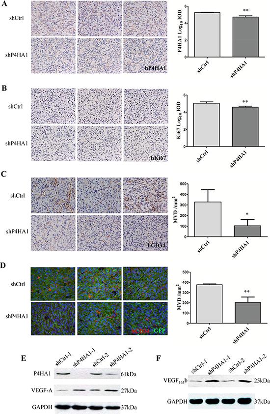 Knockdown of P4HA1 decreased the levels of Ki67 and MVD in vivo.