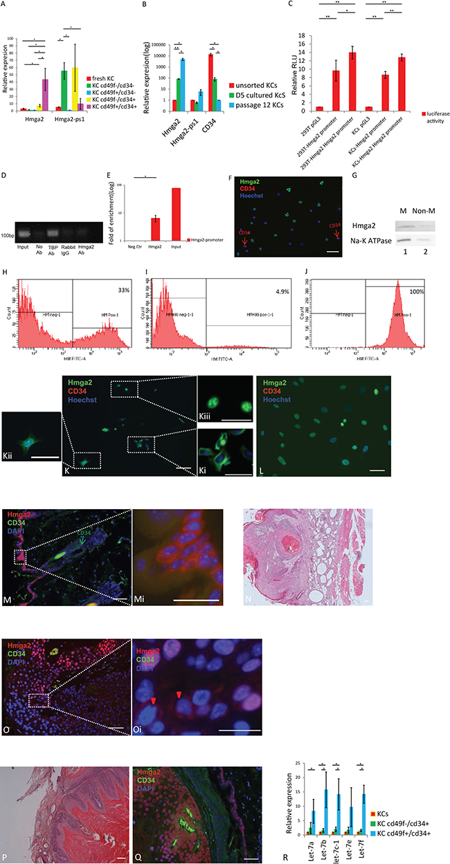 Hmga2 can be expressed as a non-nuclear protein in the adult organs.