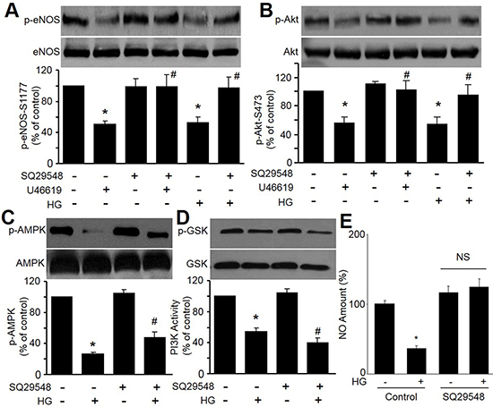 High glucose and U46619 reduce eNOS-Ser1177 and Akt-Ser473 phosphorylations in HMBECs.