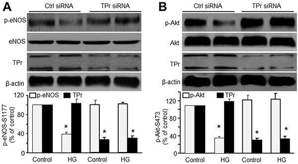 TPr activation is required for HG-induced inhibition of Akt-eNOS signaling in HMBECs.